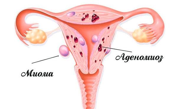 Миома часто сочетается с аденомиозом