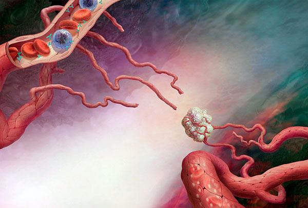 Ангиогенез миомы
