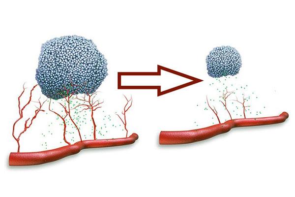 Ингибиторы подавляют ангиогенез