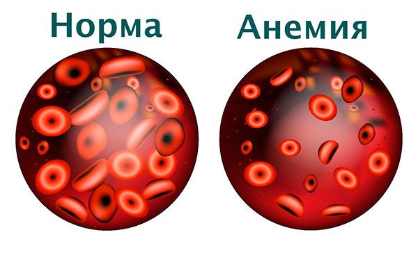 Анемия при маточном кровотечении