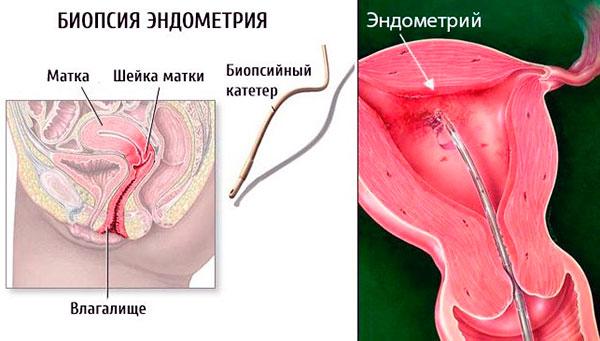 Биопсия эндометрия помогает выявить эндометрит