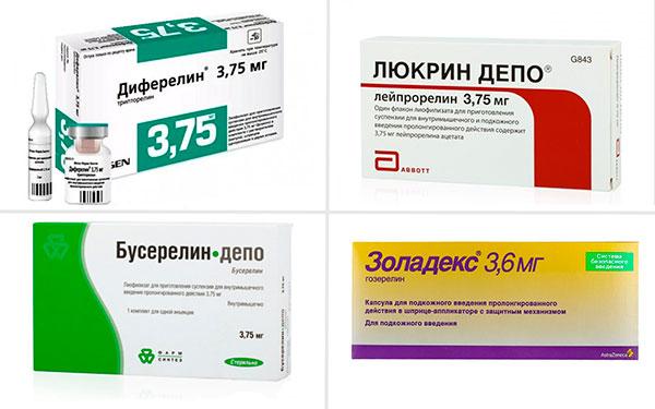 Агонисты гонадотропин-рилизинг гормона при миоме