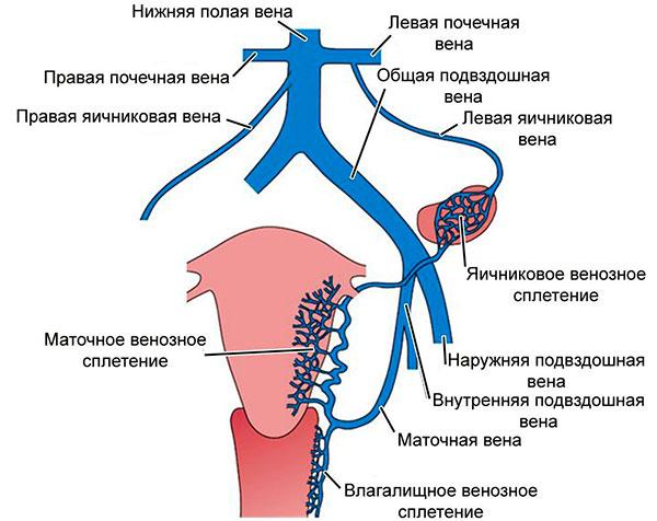 Сбой в венозной системе малого таза как причина развития миомы