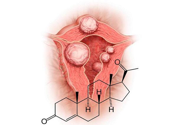 Выясняем, как влияет прогестерон на рост миомы...