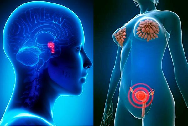 Выясняем, как гормон пролактин влияет на миому матки...