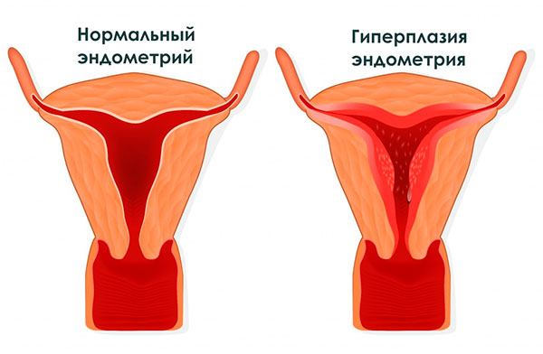 Пролактин вызывает гиперплазию эндометрия