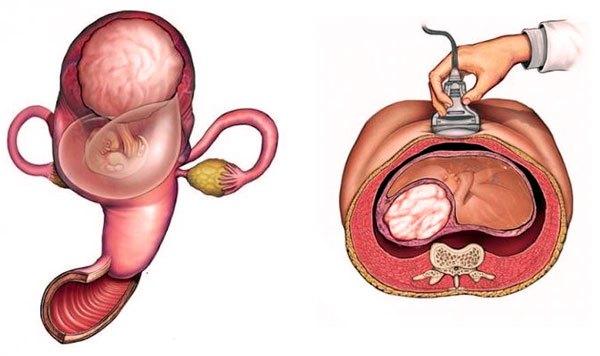 УЗИ-контроль за беременностью при миоме