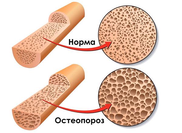 Остеопороз как результат лечения гормонами