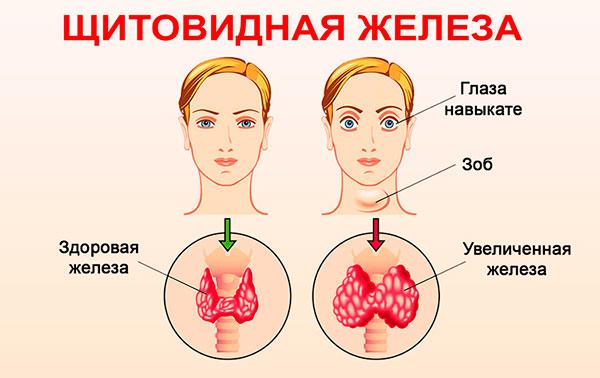 Связь щитовидной железы с женскими репродуктивными органами
