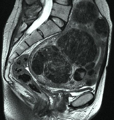 Фото МРТ субмукозной миомы матки