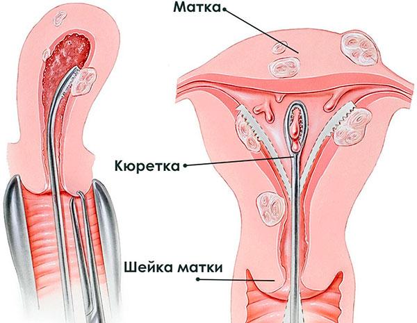 Кюретаж полости матки при кровотечении