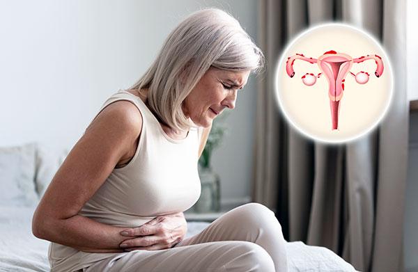 Разбираемся, как проявляет сябя эндометриоз в постменопаузу и в каких случаях не происходит регресса заболевания...