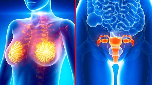 Выясняем, почему миома, эндометриоз и мастопатия нередко выявляются оновременно и как это отражается на лечении заболеваний...