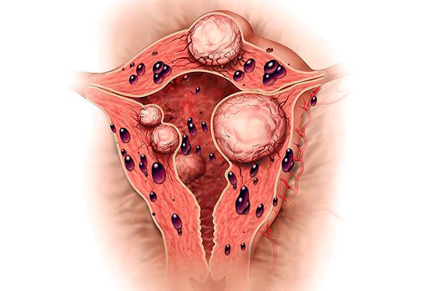 Выясняем, почему миома и эндометриознередко выявляются одновременно и как это влияет на течение болезни...