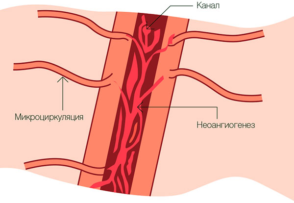 Влияние неоангиогенеза на рост гетеротопий эндометриоза