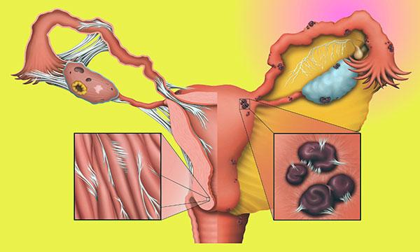 Спайки при эндометриозе могут стать причиной хронической тазовой боли