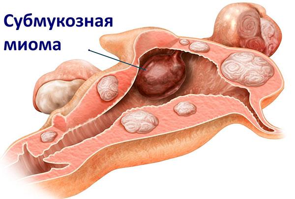 Субмукозная миома может быть удалена через влагалище