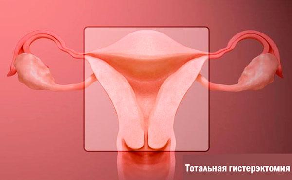 Гистерэктомия при эндометриозе